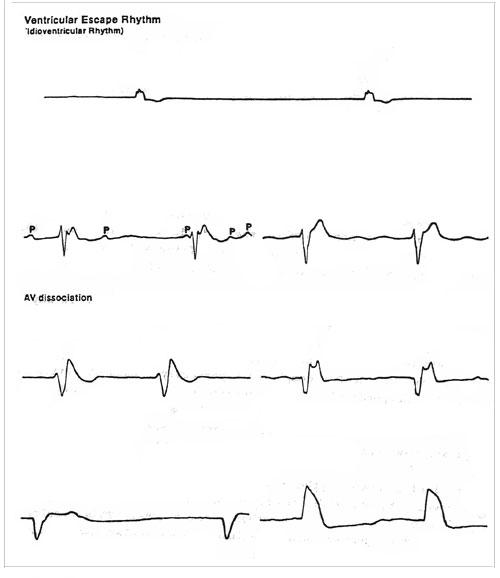 Ventricular Bigeminy Rhythm Ventricular Escape Rhythm