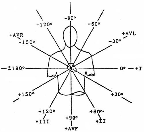 12 lead ekg limb placement diagram