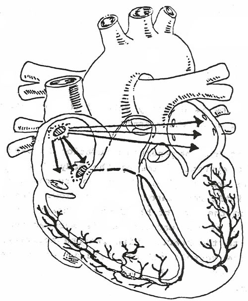 Coloring Page With The Electrician: EKG Interpretation
